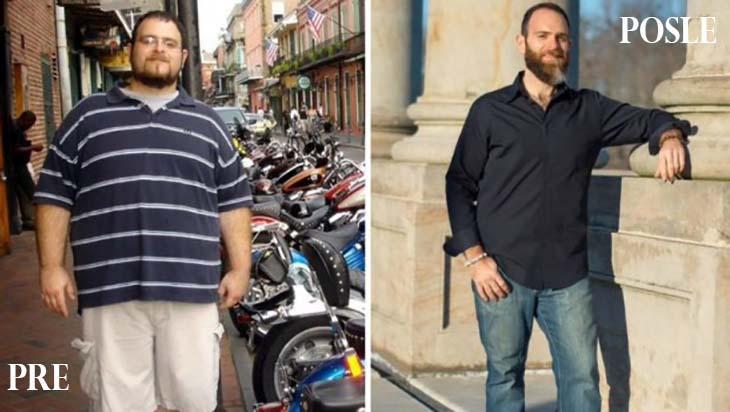 Mnogi ljudi se pate sa gojaznošću