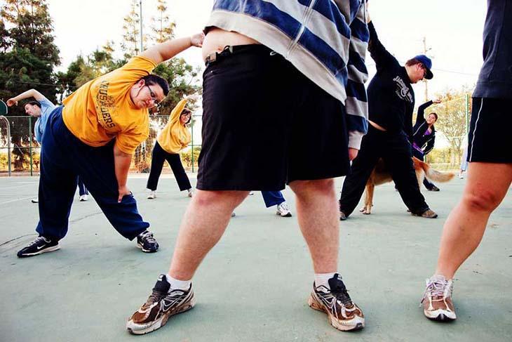 Gojaznost rađa 50 drugih bolesti